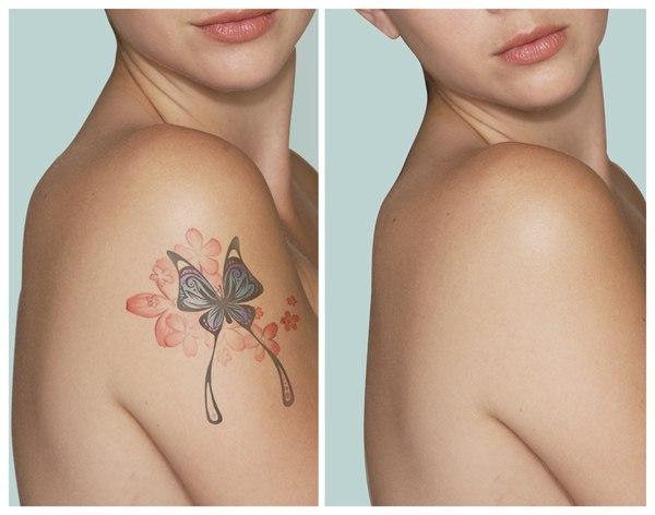 Осветлить татуировку домашних условиях - Leo-stroy.ru